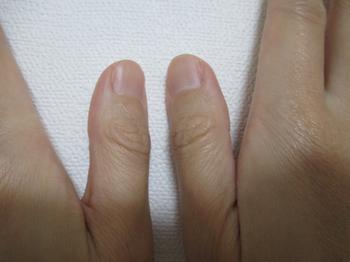 指の変形性関節症によるレントゲン撮影